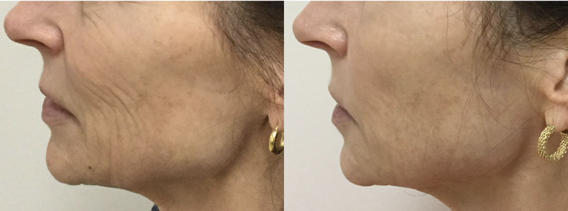 Profound Jowls and Mouth after eight Months