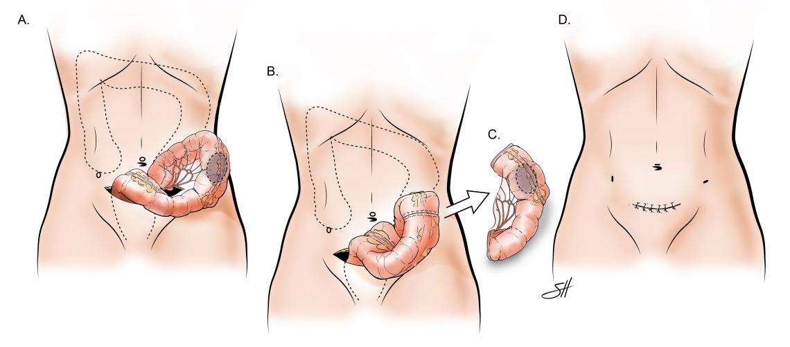 Minimally Invasive Colectomy with Standard Specimen Removal from the Abdomen. This shows the bowel to be brought out through the larger incision and the ends are hooked back up together after the bowel is resected with final incision noted.