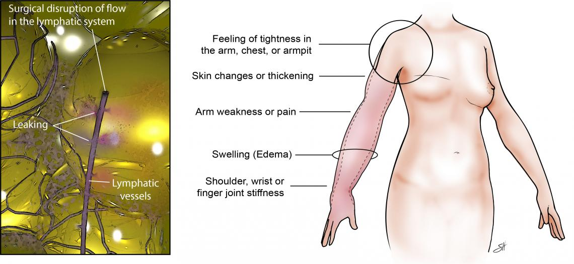 Signs and symptoms of lymphedema