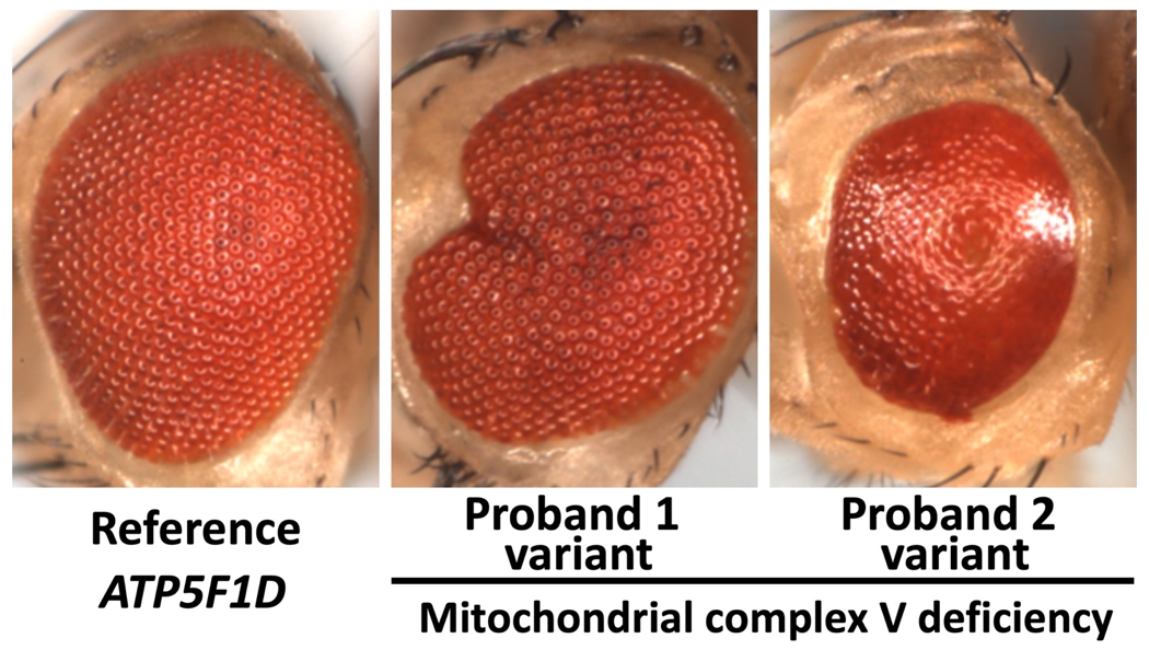 Recessive missense variants in ATP5F1D