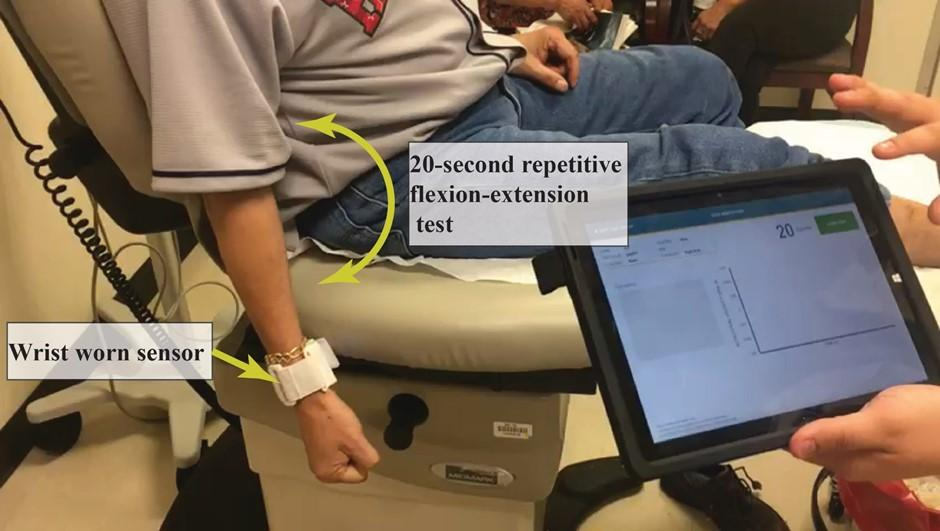 Cognitive and Motor Performance as a Predictor of PAD Vascular Surgical Outcomes