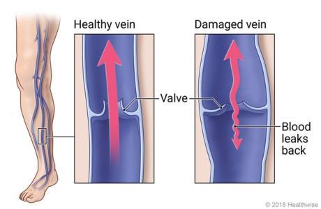 Venous insufficiency
