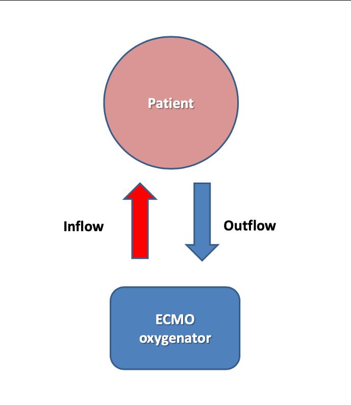 ECMO flow chart
