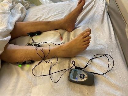 Daily use of electrical stimulation therapy to prevent ICU acquired weakness