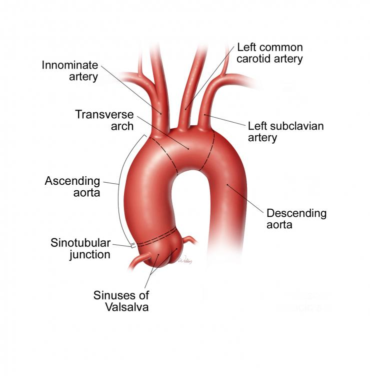 Normal aortic anatomy.