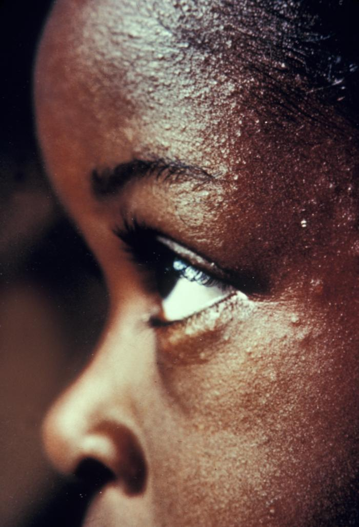 African American Child's Eyes