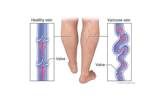 Vericose veins
