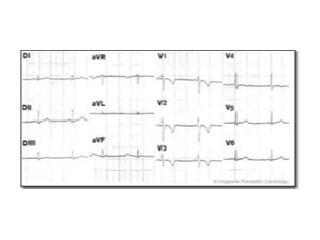ECG taken of a patient with ARVD/C