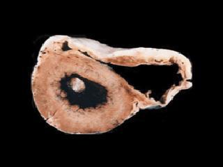 Cross-section of an ARVD/C heart