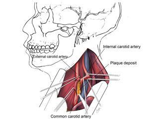 Carotid Endartectomy With Skull