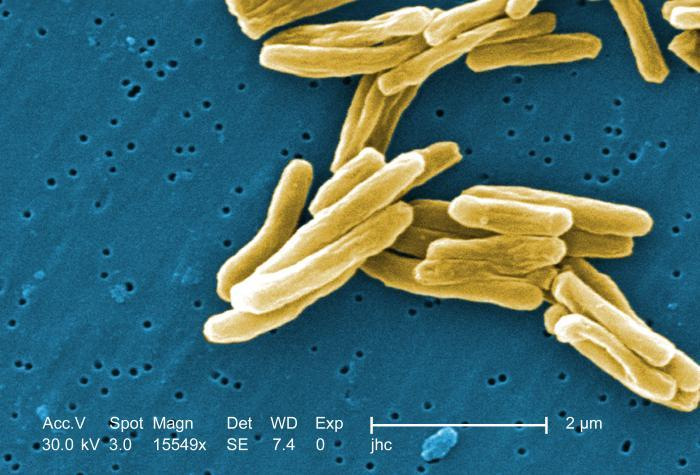 Scanning electron micrograph of a number of Gram-positive Mycobacterium tuberculosis bacteria. Magnification, 15549x.