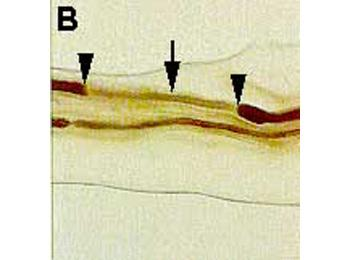 Demyelination of a nerve segment (solid arrow) between the two nodes of Ranvier (arrow heads). This finding is frequently observed in the nerve biopsy of CIDP.