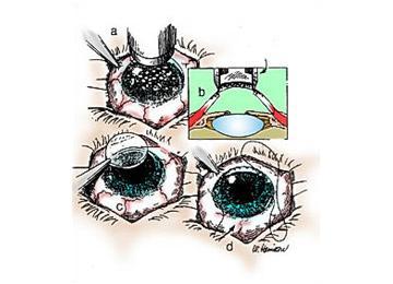 Illustration of a corneal transplantation