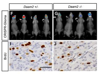 Daam2 driven degradation of VHL promotes gliomagenesis