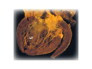 DCM Heart. Towbin, JA and Bowles, NE. The Failing Heart. Nature. 2002; 415:227-33.