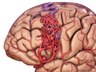 Figure 1. A brain arteriovenous malformation (AVM) is an abnormal tangle of unusually formed blood vessels in the brain.