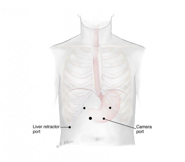 Minimally invasive esophagectomy laparoscopic port sites - courtesy McGraw-Hill