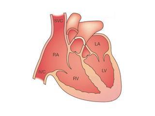 LVNC Heart. Towbin, JA and Bowles, NE. The Failing Heart. Nature. 2002; 415:227-33.