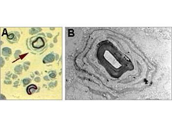 Onion bulb formation observed in semi-thin sections (A) and by electron microscopy (B).