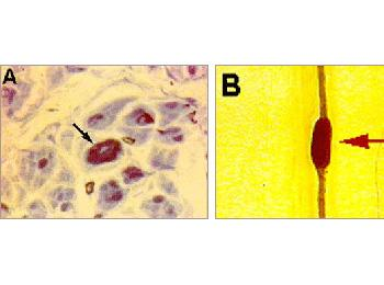 """Hereditary neuropathy with liability to pressure palsies. (A) Note nerve fibers with """"thickened"""" myelin sheath as is seen in semi-thin sections (arrow). In a single teased nerve fiber preparation (B), the """"thickened"""" area appears as sausage-like structure"""
