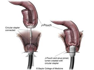 The J-pouch is sewn or stapled to the anus using a circular stapler. Illustration by Scott Holmes