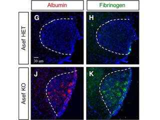 Temporal profiling of astrocyte precursors reveals parallel roles for Asef during development and after injury