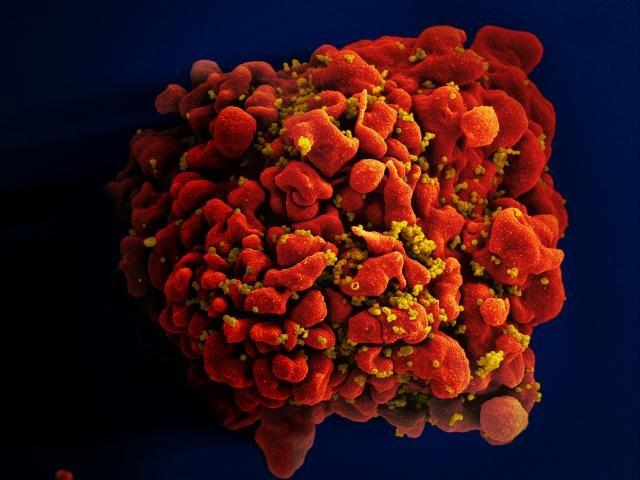 Scanning electron micrograph of an HIV-infected H9 T cell.