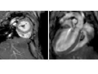 MRI images of mouse hearts.