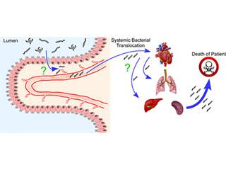 The translocation of pathogenic pathobionts from the intestinal lumen to the systemic circulation.