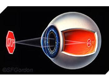 Refractive errors - normal eye