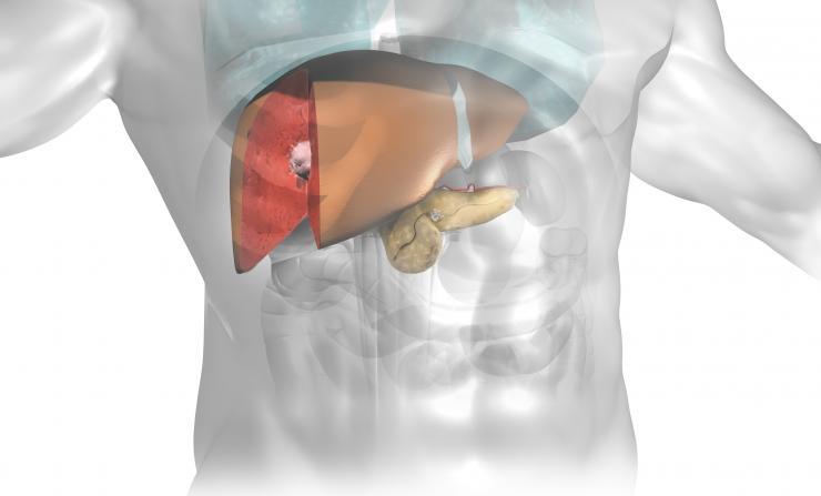 Liver and Pancreas tumors