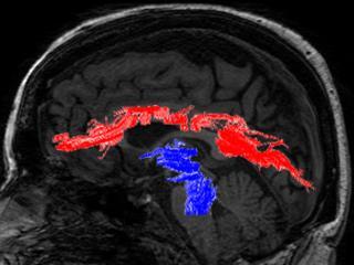 Sagittal MRI image
