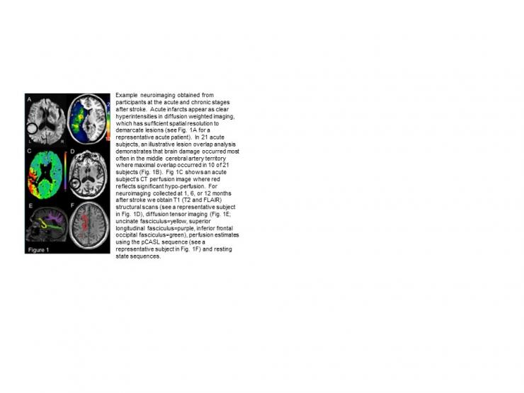 Language and Neural Recovery from Stroke – Tatiana T. Schnur, Ph.D.