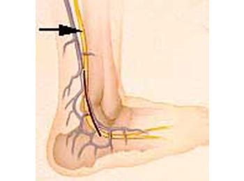 Anatomical location of a sural nerve.