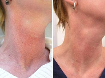 Above are before (left side) and after (right side) photographs of a patient treated at Baylor Dermatology for poikiloderma (redness on the neck) with two IPL treatments.