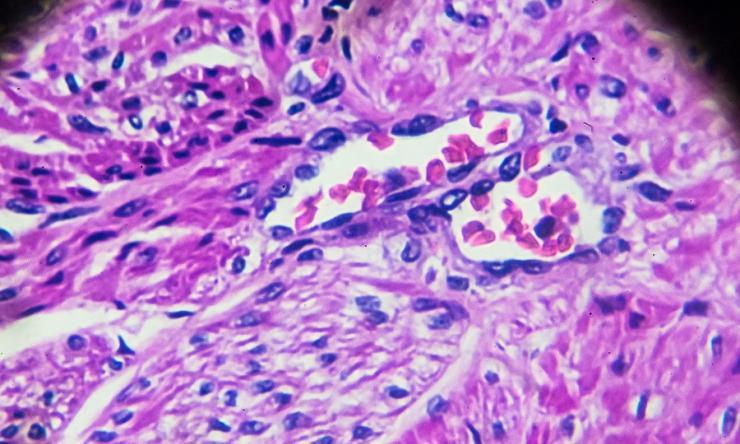 Carcinoma cells under the microscope