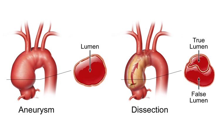 neurysm-vs-dissect-arch