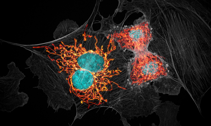 Bovine pulmonary artery endothelial cells in the process of dividing