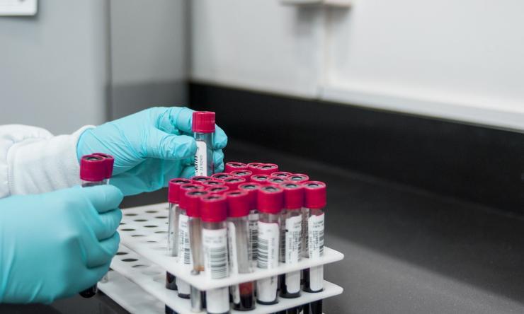 Close up of hands handling blood sample tubes