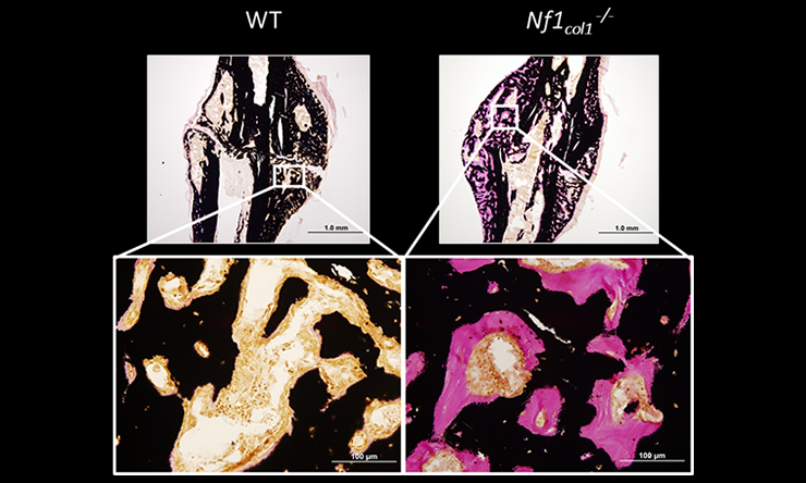 Our studies identified porosity, abnormal bone mineralization and weak mechanical properties in mouse models of NF1 bone dysplasia.