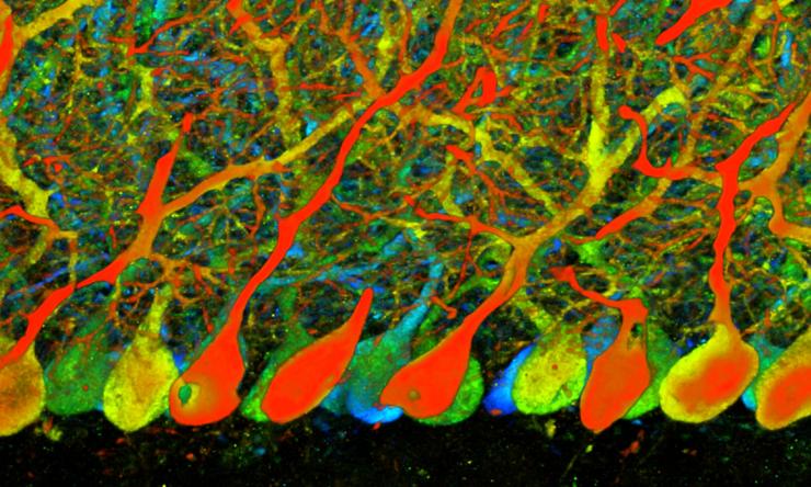 neurosurgery landing research