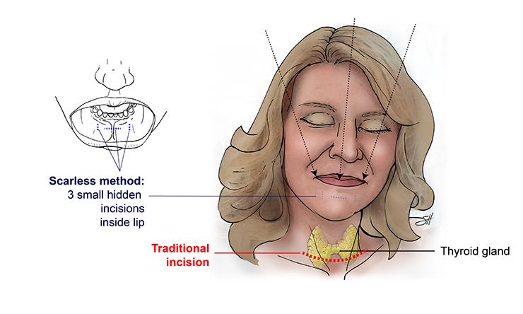 Transoral Thyroidectomy
